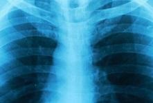 AMAA asbestos disease xray