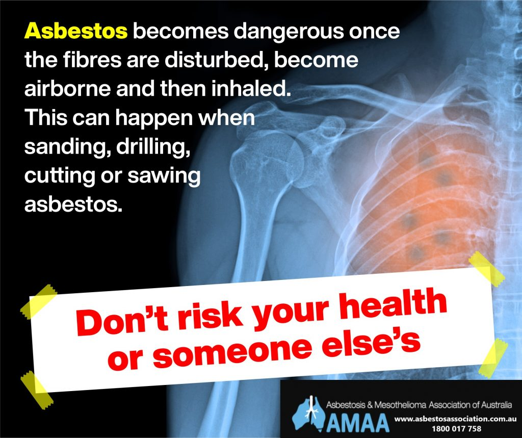 Asbestos and your health